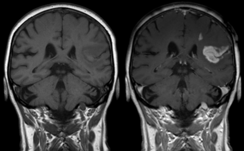 Can Hormone Therapy Treat Traumatic Brain Injuries?